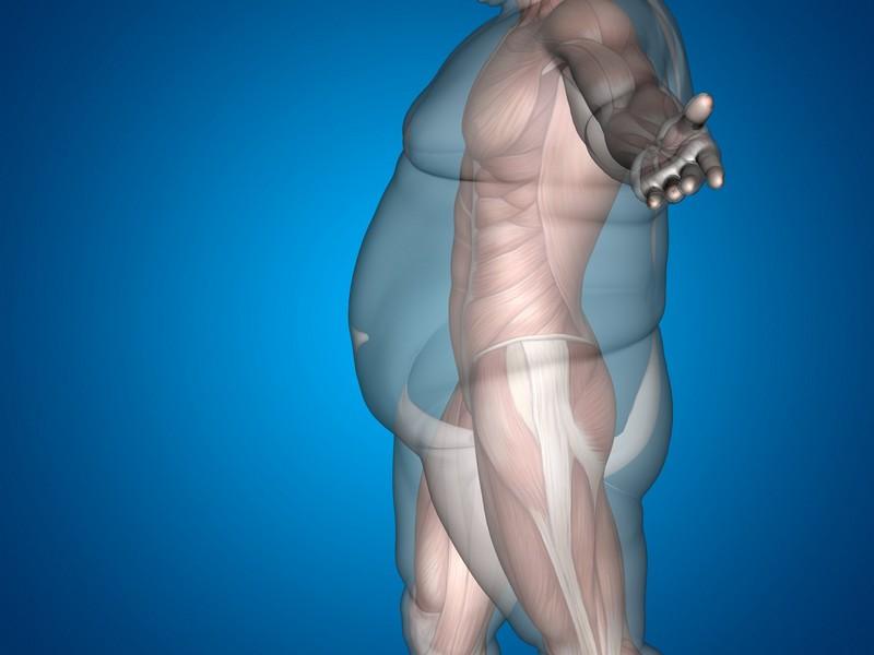 ожирение-в-разрезе